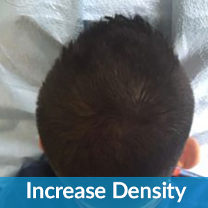 Increase DEnsity Hair