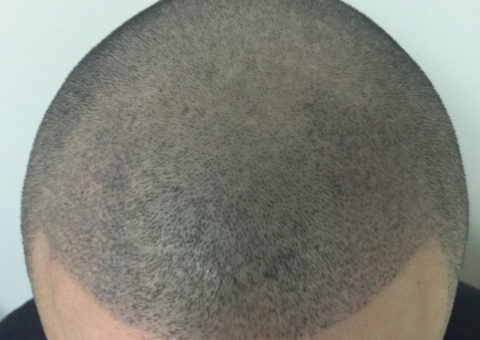 General or extreme male-pattern balding