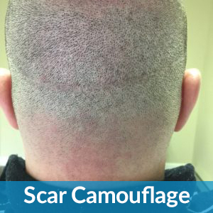 Scalp Micro-Pigmentation new jersey specialist